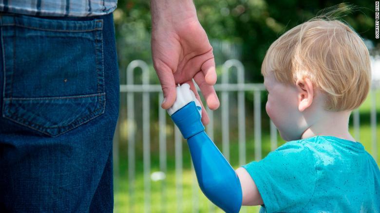 bionics arm