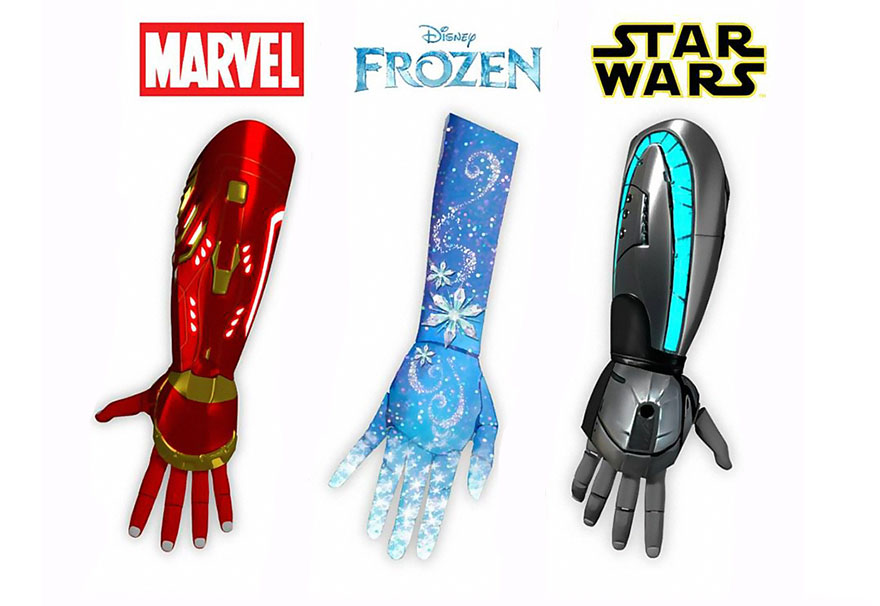 bionics arms